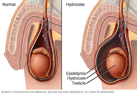 Hydrocele - Treatment in Chennai | Metromale Clinic