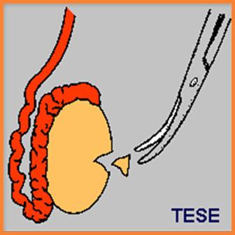 Micro TESE - Sexologist in Chennai