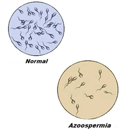 Azoospermia | Metromale Clinic & Fertility Center