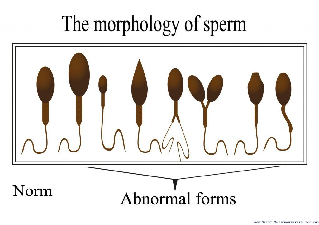 Teratozoospermia - Morphology of Sperm