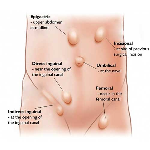 Types of Hernia treated at Metromale Clinic & Fertility Center