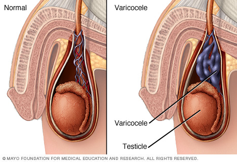 Varicocele Surgery Surgeon in Chennai
