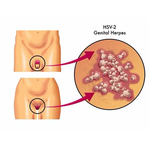 Genital Herpes - HSV2 Treatment in Chennai