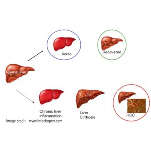 Hepatitis Treatment in chennai