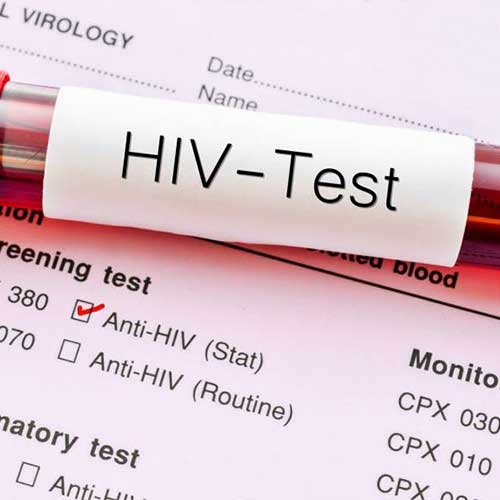 When to get tested for confirmed HIV results? | Metromale