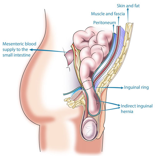 Inguinal Hernia Causes Infertility in Men