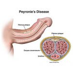 What is Peyronie's Disease?