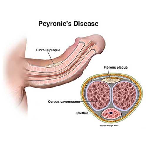 Peyronies disease treatment in chennai