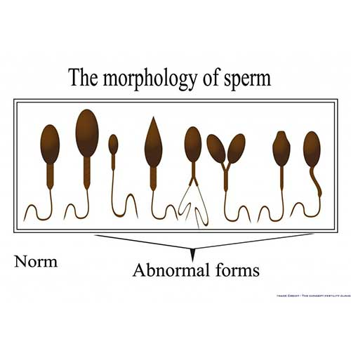 Sperm Morphology - Does it matter how sperm looks