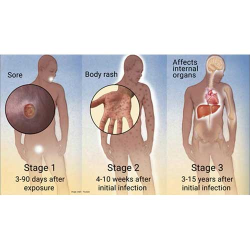 Syphilis - Symptoms and Treatment in Chennai