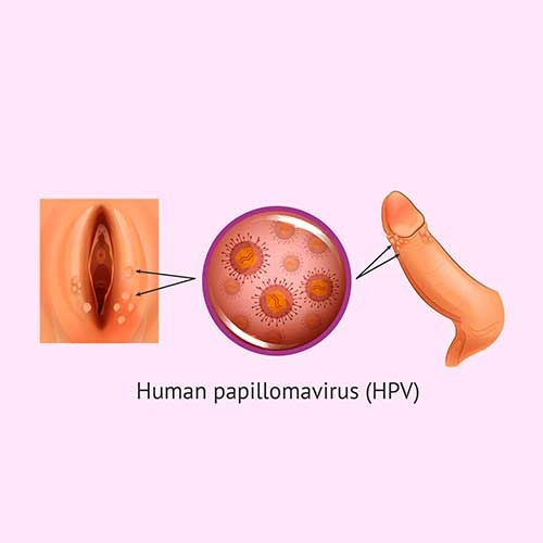 HPV - Human Papiloma Virus Treatment in Chennai