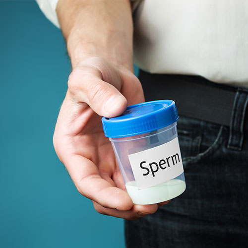artificial-insemination-collection-of-semen-by-man-at-hospital