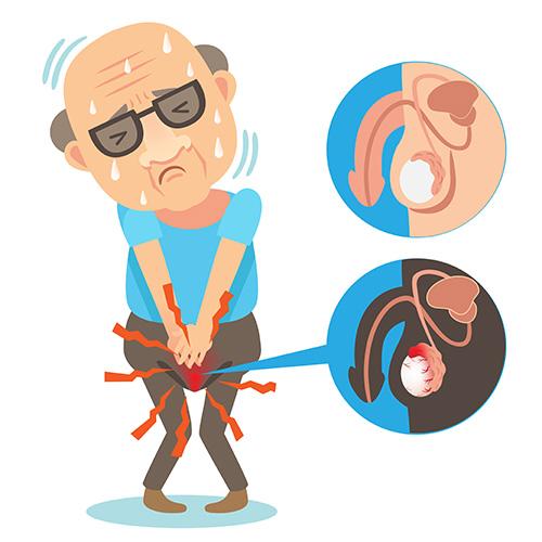 testicular-cancer-in-older-men