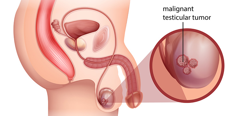 testicular-cancer-metromale-clinic-fertilty-center-treatment-web