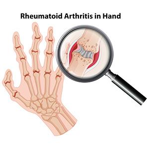 arthritis-reason-for-low-sex-drive