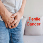 Penile Cancer – Cancer of the Penis – Causes, Symptoms & Treatment