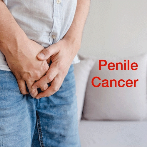 penile-cancer-symptoms-causes-treatment-chennai-sexologist