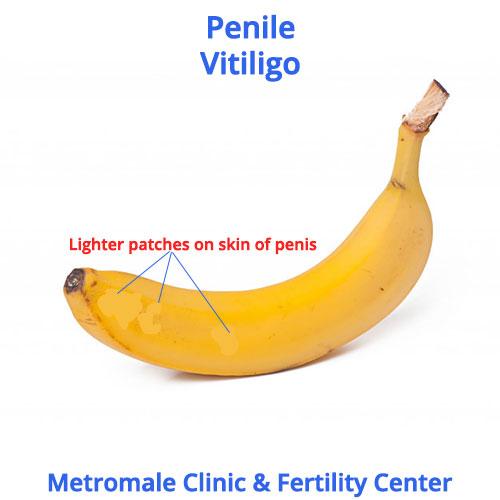 penile-vitiligo-causes-symptoms-treatment-metromale-clinic-fertility-center