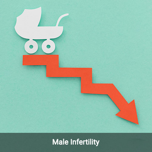 Male Infertility – What are the tests done to diagnose male infertility?
