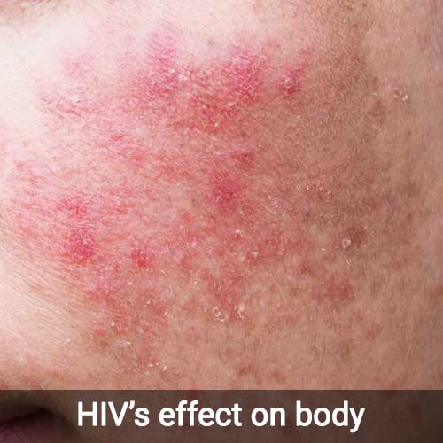 effect-of-hiv-on-human-body