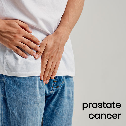 Prostate Cancer – Symptoms, Diagnosis & Treatment
